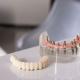 dental implantation