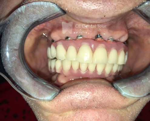 dental implant before after