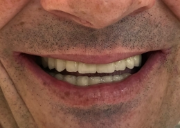 Fixed teeth with All-on-4