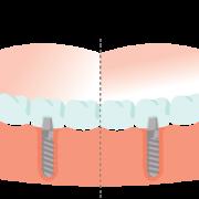teljes fogív pótlása fogászati implantátummal