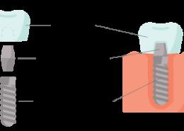 fogászati implantátum részei